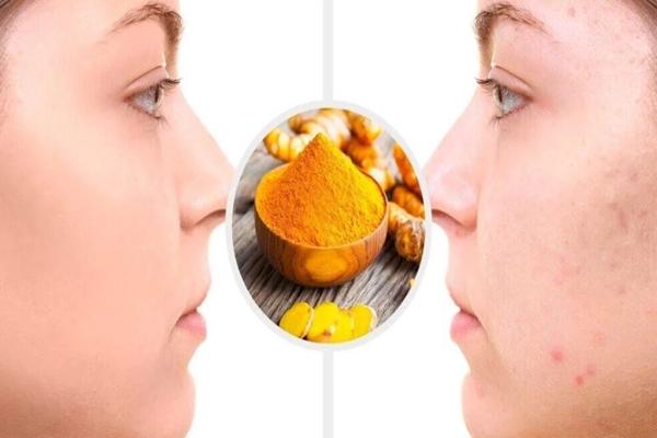 zerdeçalın cilde faydaları